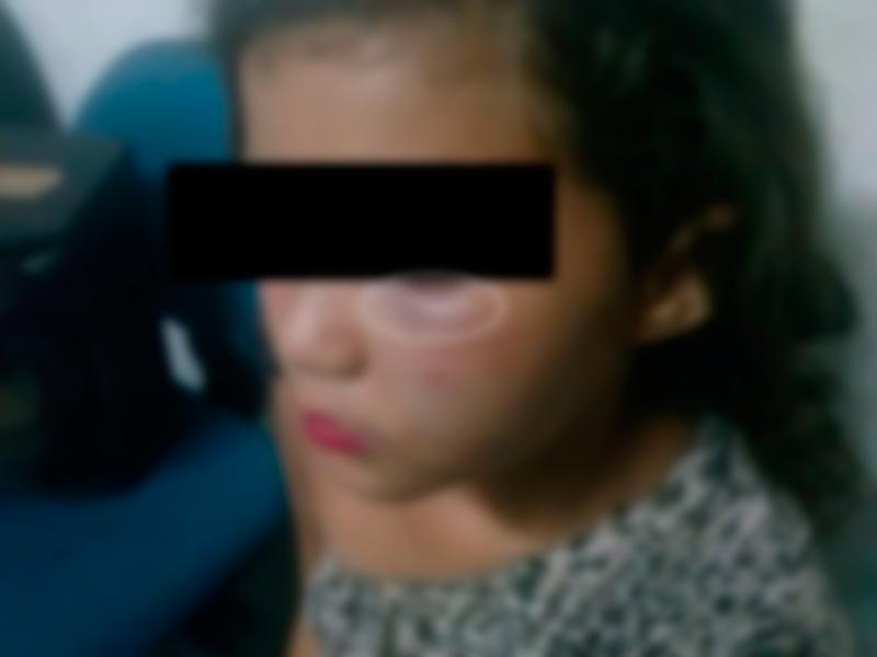 Menina, de apenas 9 anos, teria sido agredida pelo pai (FOTO: Divulgação/Sobral 24 horas)