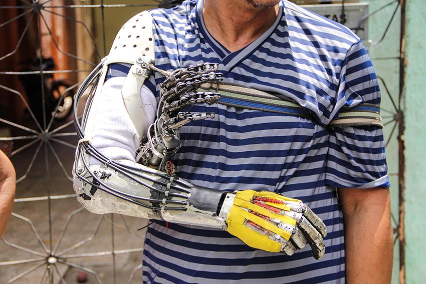 Surdo amputado que criou braço de lata inventa nova prótese ainda mais incrível