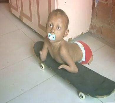 Saiba os direitos para crianças que nascem com deficiência