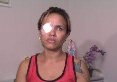 Vítima estava na casa de uma amiga quando houve a agressão. (FOTO: reprodução/ TV Jangadeiro)