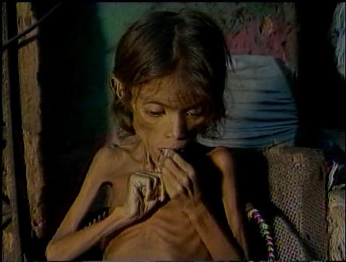 Meirinha quase não andava. Com apenas 10 kg, ela não tinha forças nem para falar (FOTO: Reprodução/TV Jangadeiro)