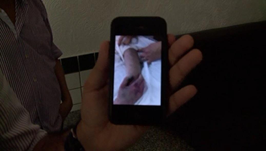 Família estranha hematomas na universitária (FOTO: Divulgação)